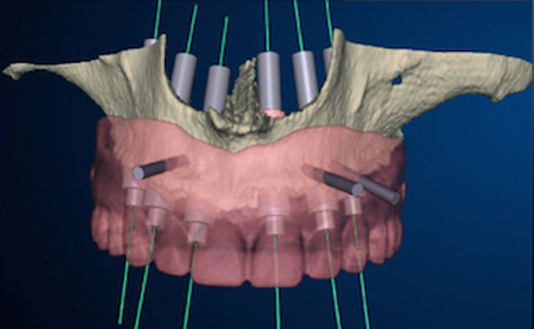 <strong>DENTAL IMPLANTS & CONE BEAM CT SCANNING</strong>