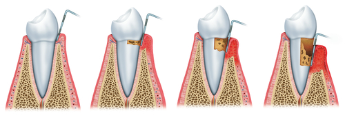 <strong>PERIODONTAL POCKET REDUCTION PROCEDURES</strong>
