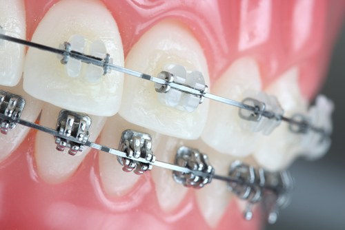 <strong>PERIODONTAL PROCEDURES & ORTHODONTIC TREATMENT</strong>